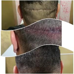 Tricopigmentazione 2